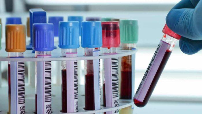 ISO 15189 pour les laboratoires médicaux